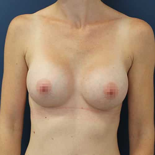 breast enlargement cheshire wilmslow chester cheshire london