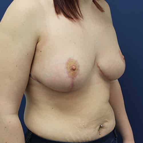 breast lift chester manchester wilmslow cheshire