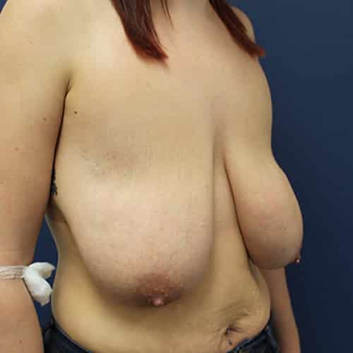 breast lift before cheshire wilmslow manchester chester london
