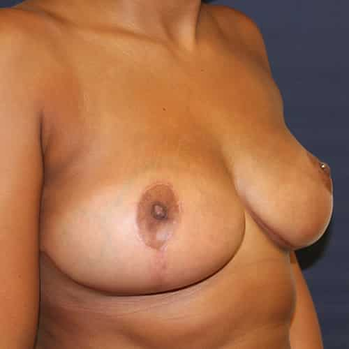 breast reduction manchester chester cheshire london