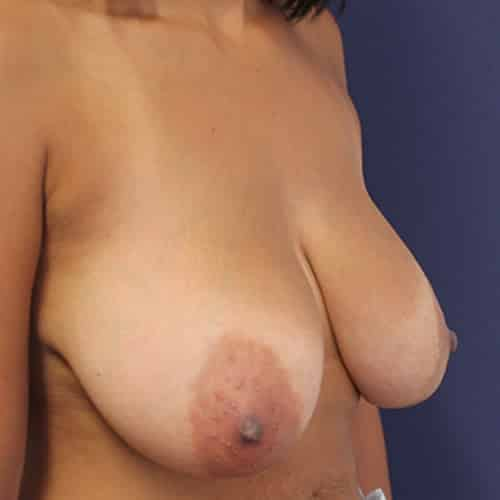 breast reduction before cheshire chester manchester london