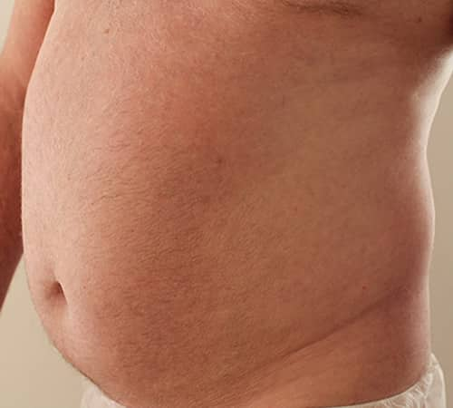 liposuction before manchester chester cheshire wilmslow london