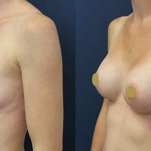 Breast enlargement cheshire