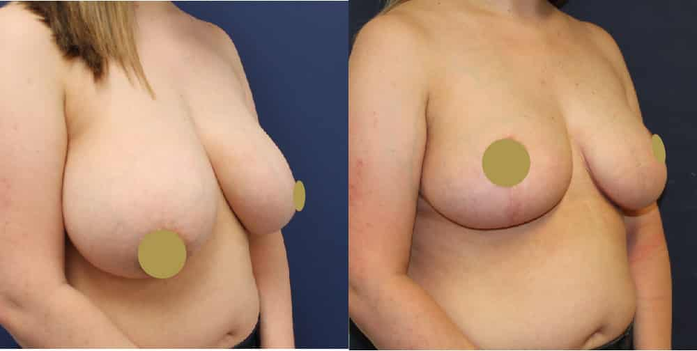 Breast Reduction Cheshire